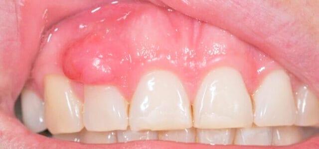 Épulis dental