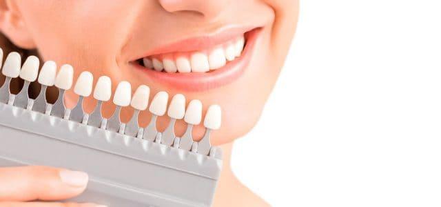 Tonos de carillas dentales