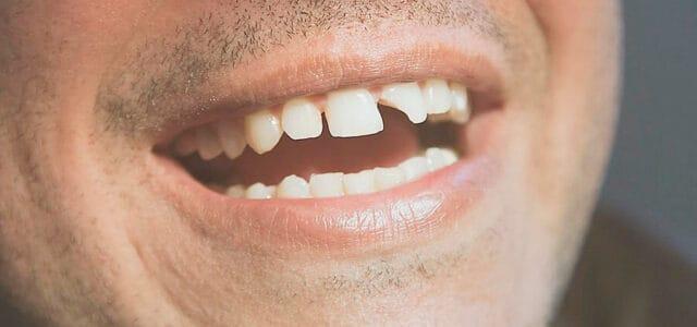 Fractura de un diente