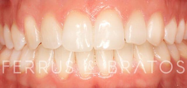 Fase final ortodoncia