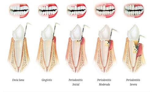 periodontitis-gingivitis-fases