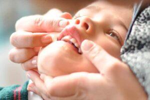 Frenillo de la boca