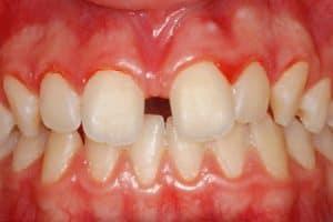 Frenectomía para cerrar espacio entre dientes