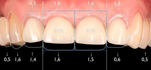 Contorneado dental