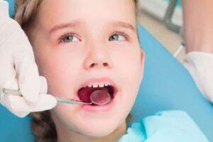 Gingivitis en los niños