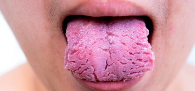 Quitar grietas en la lengua