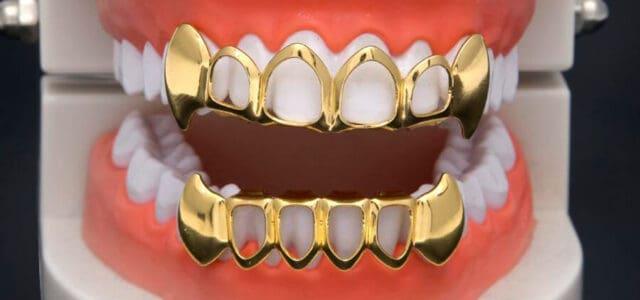 Grillz en los dientes