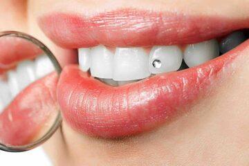 Brillantes en los dientes