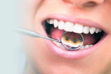 Brackets e higiene dental