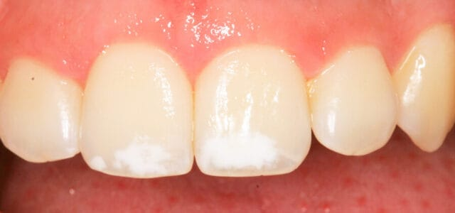 mancha blanca en los dientes