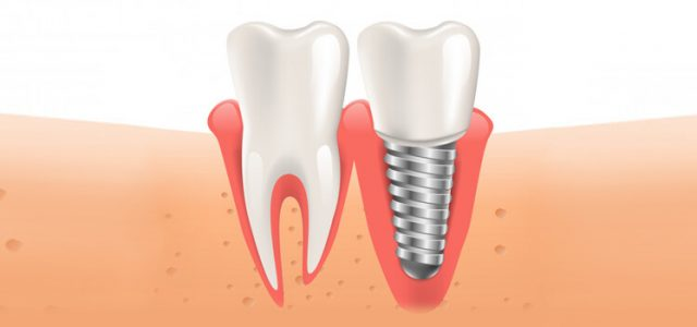 Gingivitis de los implantes