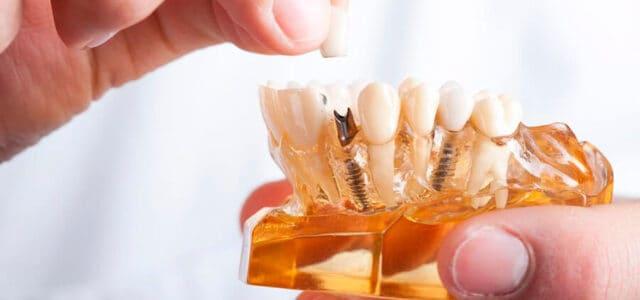 Implante oseointegrado