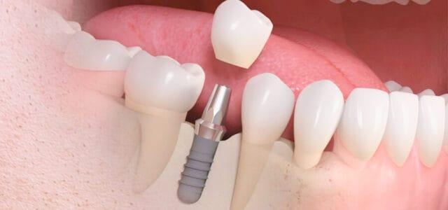 Recuperar un diente