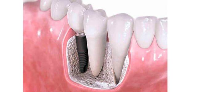 Implante colocado en hueso maxilar