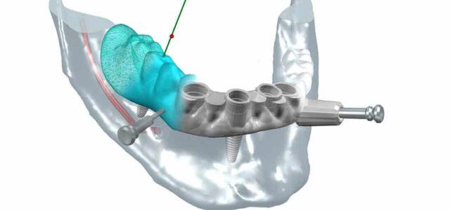 Poner implantes dentales en un día