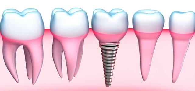 Implante tras perder diente