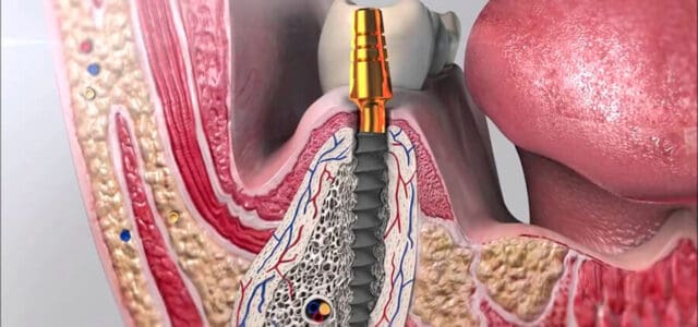 Cicatrización de un implante