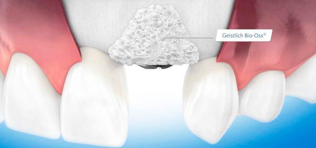 Sistema para pacientes con implante