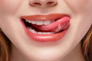Problemas de la lengua fisurada