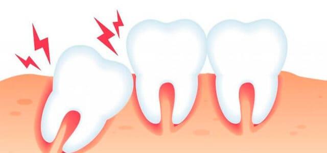 Impacto dental