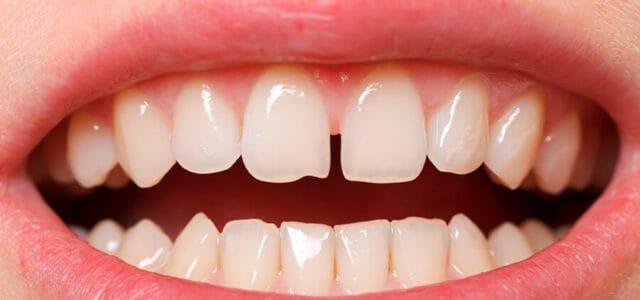 Separación en los dientes
