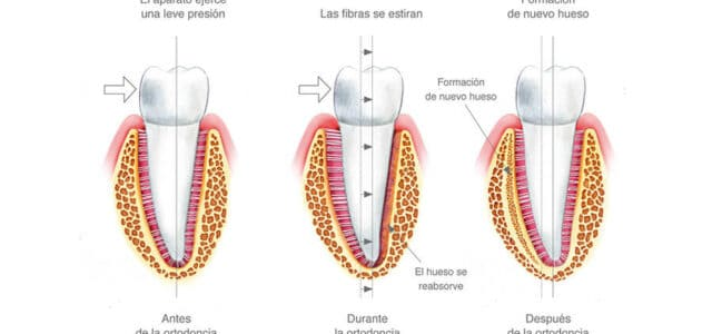 Movimientos dentales