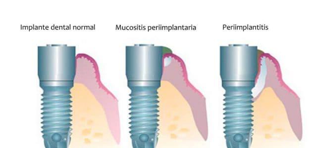 Mucosistis periimplantaria