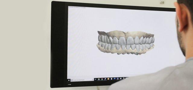 Muestra virtual de una prótesis