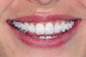 Enfermedad periodontal y brackets