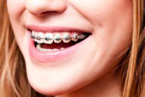 Sonrisa con ortodoncia