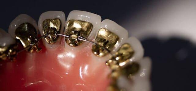 Brackets por dentro de los dientes