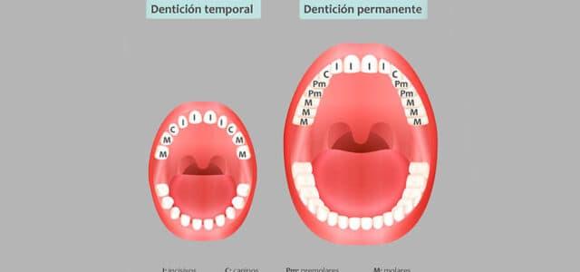 Dentición mixta