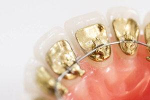 Ortodoncia lingual Icongito