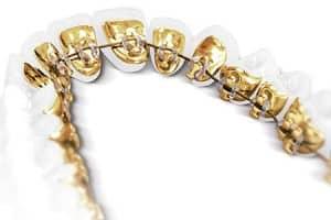 Ortodoncia invisible Incógnito