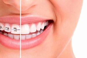 Tratamiento para corregir los dientes