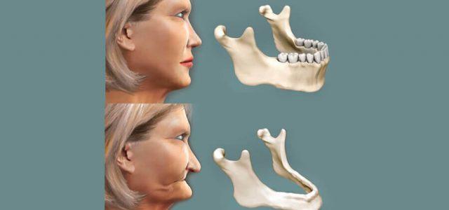 La falta de dientes provoca la reabsorción ósea