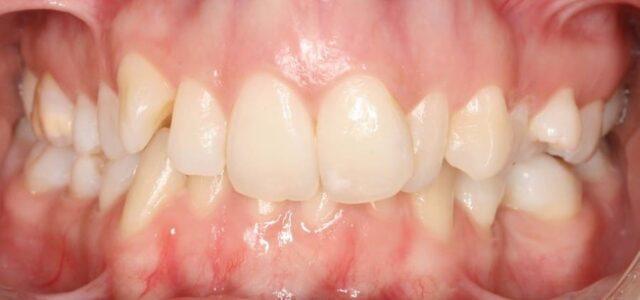 Dientes montados antes de la ortodoncia