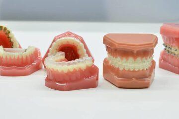 Ortodoncia precio