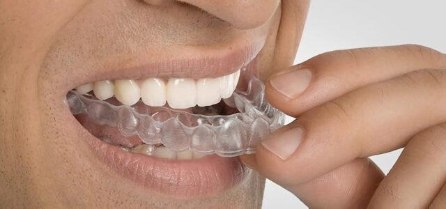 Puedo hablar con ortodoncia con Invisalign
