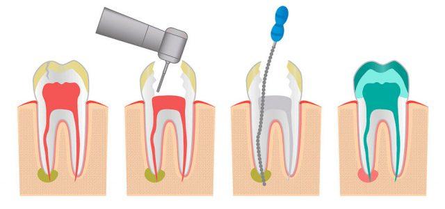 Endodoncia de un diente