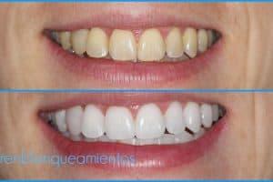 mejores productos de blanqueamiento dental