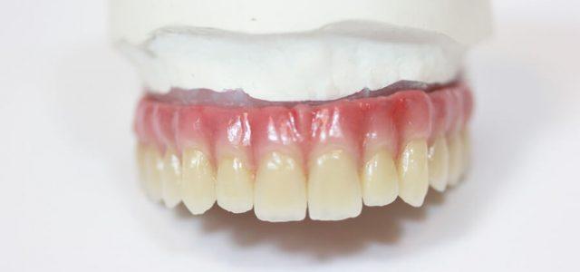 Rehabilitación bucal completa
