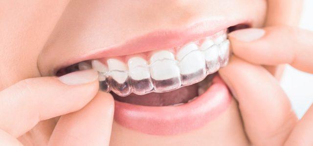 Qué ortodoncia es más cómoda para hablar