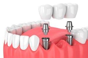 Puentes dentales sobre implantes