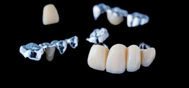 ¿Qué son los puentes dentales?