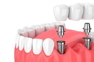 Puentes dentales vs implantes