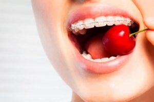 La ortodoncia restringe la dieta