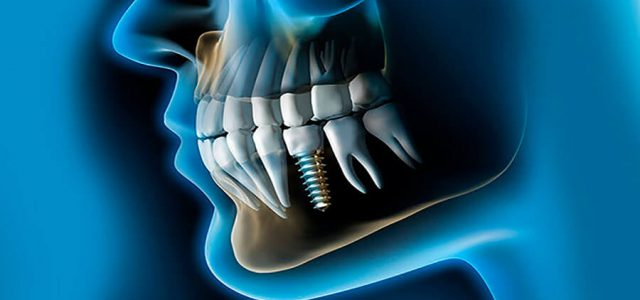 Boca con varios implantes