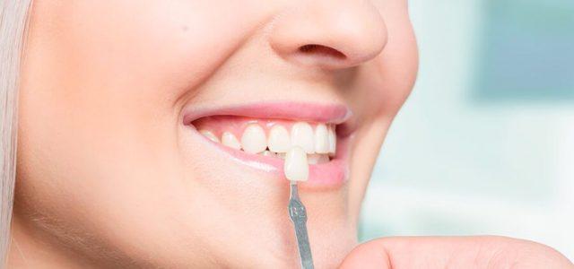 La carilla imita el color del diente