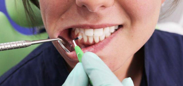 Haz revisiones periódicas en el dentista